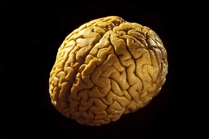 چقدر با مغز خود آشنا هستید؟
